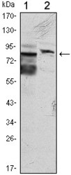 NBP1-51626 - Kelch-like protein 11