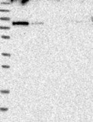 NBP1-81413 - Kelch-like protein 14