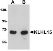 NBP1-77359 - KLHL15
