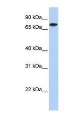 NBP1-57512 - Kelch-like protein 23