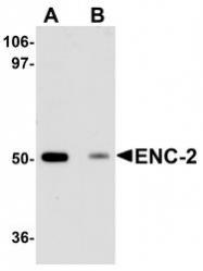 NBP1-77147 - Kelch-like protein 25