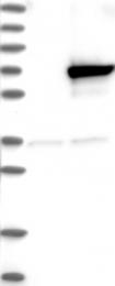 NBP1-83974 - Kelch-like protein 25