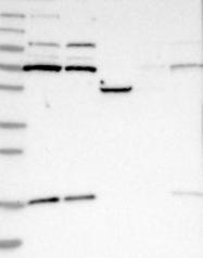 NBP1-83880 - Kelch-like protein 6