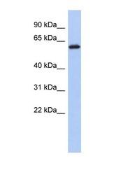 NBP1-55462 - KLHL7