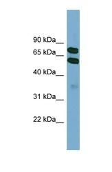 NBP1-55091 - Kelch-like protein 9