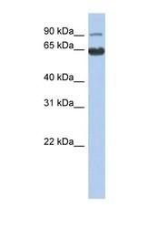 NBP1-56287 - CCDC128