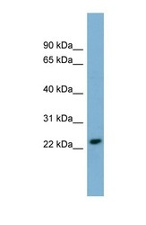 NBP1-59933 - KLRC3