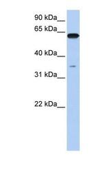 NBP1-52953 - KPNA6 / Importin alpha-7