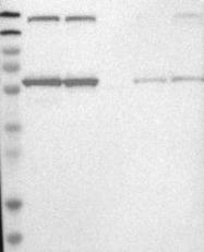 NBP1-83762 - KPNA6 / Importin alpha-7