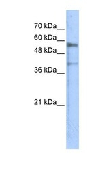 NBP1-59371 - Kremen protein 1