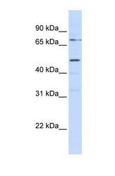 NBP1-59717 - Kremen protein 1