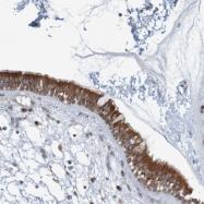 NBP1-85597 - Cytokeratin 23