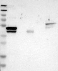 NBP1-85596 - Cytokeratin 23