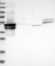 NBP1-83665 - Cytokeratin 24