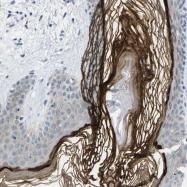 NBP1-81648 - Cytokeratin 2p