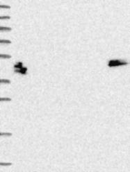 NBP1-93662 - Keratin-80 (KRT80)