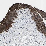 NBP1-94100 - Cytokeratin 9