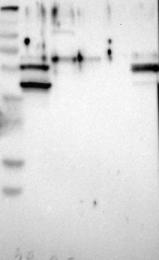 NBP1-94099 - Cytokeratin 9