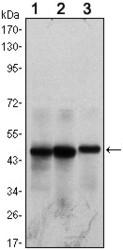 NB100-2189 - Herpes Virus Type 8 / HHV8