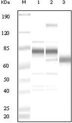 NB100-2197 - Herpes Virus Type 8 / HHV8