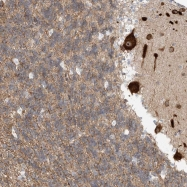 NBP1-83553 - Kinase suppressor of Ras 2