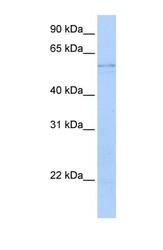 NBP1-56545 - Kynureninase