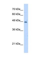 NBP1-57569 - Kynureninase