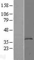 NBL1-12416 - KYNU Lysate