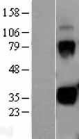NBL1-12343 - Kallikrein 1 Lysate