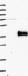 NBP1-90265 - KLK15 / Kallikrein-15