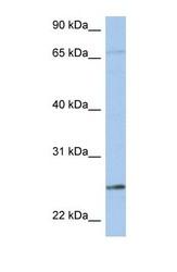 NBP1-54713 - KLK6 / Kallikrein-6