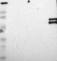NBP1-87777 - Kallistatin / SERPINA4
