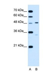 NBP1-62542 - CHST1
