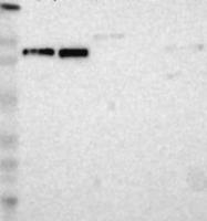 NBP1-83253 - KIF2A