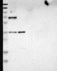 NBP1-86126 - Ladinin-1