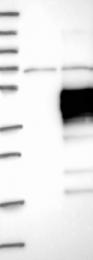 NBP1-84590 - CD305 / LAIR1