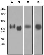 NBP1-95300 - Lysosome-associated membrane glycoprotein 1