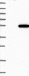 NBP1-83339 - LANCL2