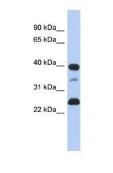 NBP1-59402 - TMPO / LAP2