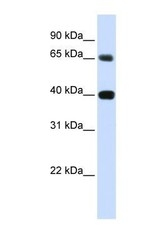 NBP1-59489 - TMPO / LAP2 alpha