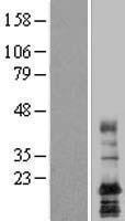NBL1-12436 - LAPTM4A Lysate