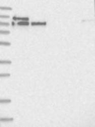 NBP1-87902 - LARP5