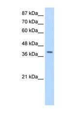 NBP1-57554 - LARP7