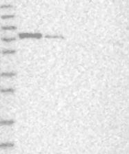 NBP1-85083 - LARP7