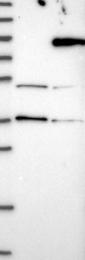 NBP1-85084 - LARP7