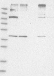 NBP1-84537 - LASS2