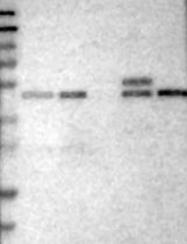 NBP1-87331 - SLC43A1 / LAT3