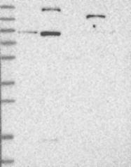 NBP1-86759 - Lebercilin