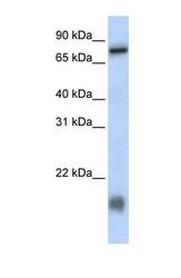 NBP1-70597 - Lebercilin-like protein