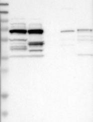 NBP1-88281 - Lebercilin-like protein